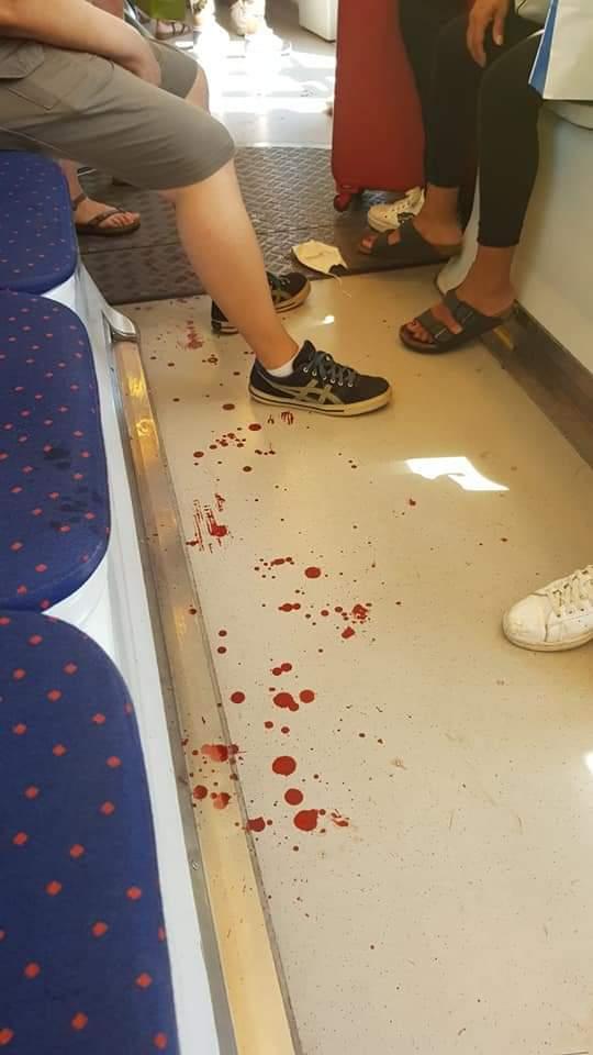 Sangue in tramvia